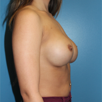 18-24 year old woman treated with Breast Augmentation after 3805822