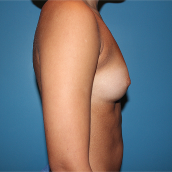18-24 year old woman treated with Breast Augmentation before 3805822