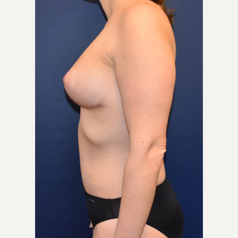 35-44 year old woman treated with Sientra Breast Implants after 3049673