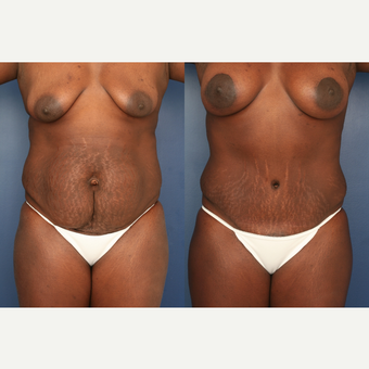 35-44 year old woman treated with Mommy Makeover before 3699257