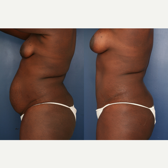 35-44 year old woman treated with Mommy Makeover after 3699257