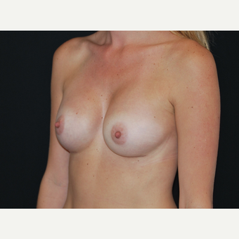 25-34 year old woman treated with Breast Implants after 3651606