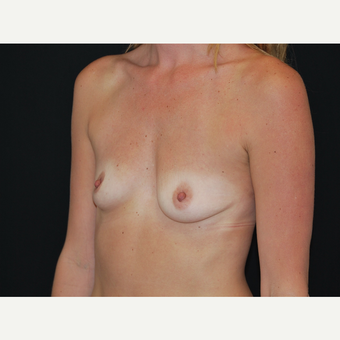 25-34 year old woman treated with Breast Implants before 3651606