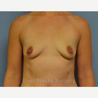 25-34 year old woman treated with Breast Augmentation before 3342155