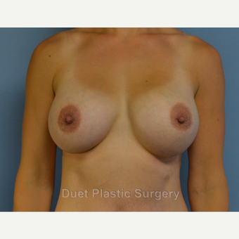 25-34 year old woman treated with Breast Augmentation after 3342155