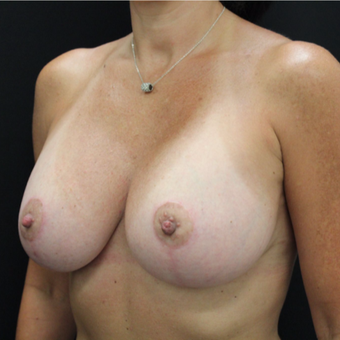 35-44 year old woman treated with Breast Lift with Implants after 3664947
