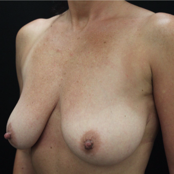 35-44 year old woman treated with Breast Lift with Implants before 3664947
