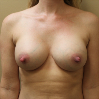 Transaxillary Subpectoral Breast Augmentation with Silicone after 3460072