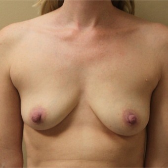 Transaxillary Subpectoral Breast Augmentation with Silicone before 3460072