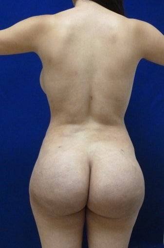 24 y.o. female – Liposuction of abdomen, flanks, and back with fat transfer to buttocks & hips– 900cc per side after 1506165