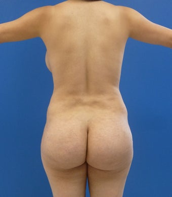24 y.o. female – Liposuction of abdomen, flanks, and back with fat transfer to buttocks & hips– 900cc per side before 1506165