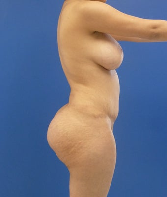24 y.o. female – Liposuction of abdomen, flanks, and back with fat transfer to buttocks & hips– 900cc per side 1506165