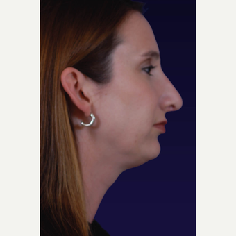 25-34 year old woman treated with Rhinoplasty after 3423527