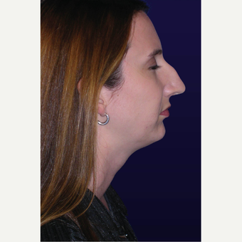 25-34 year old woman treated with Rhinoplasty before 3423527