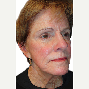 65-74 year old woman treated with Brow Lift
