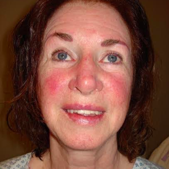 Facelift Revision (10 Year Tune Up) - Female 73 Years Young before 2700421