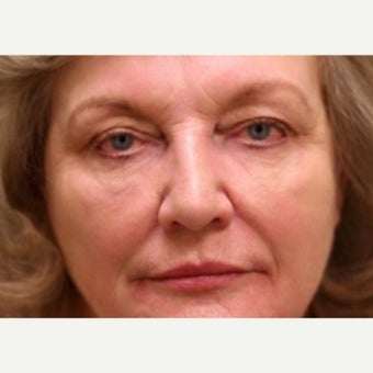 55-64 year old woman treated with injectables only to achieve nonsurgical facelift after 1878681