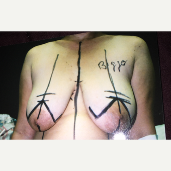 45-54 year old woman treated with Breast Lift before 3333593