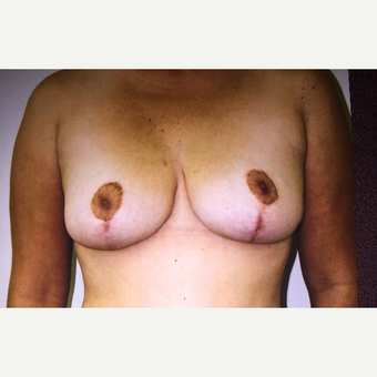 45-54 year old woman treated with Breast Lift after 3333593