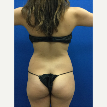 25-34 year old woman treated with Liposuction before 3142378
