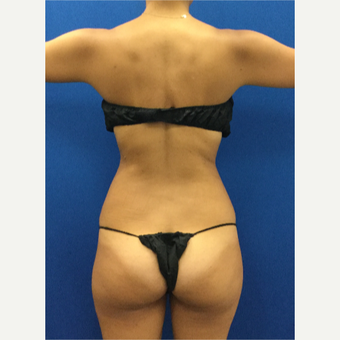 25-34 year old woman treated with Liposuction after 3142378