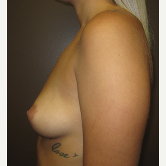 18-24 year old woman treated with Breast Implants before 3610240