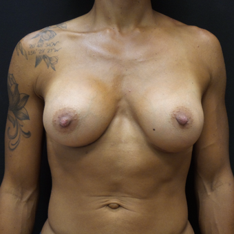 Breast Augmentation after 3012516