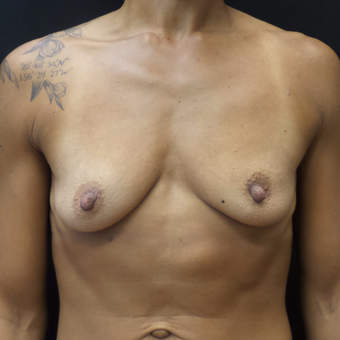 Breast Augmentation before 3012516