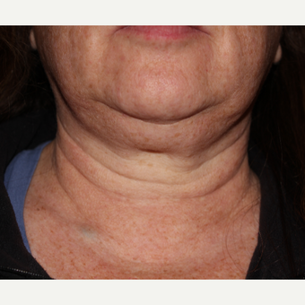 55-64 year old woman treated with 1 treatment Kybella before 3185549