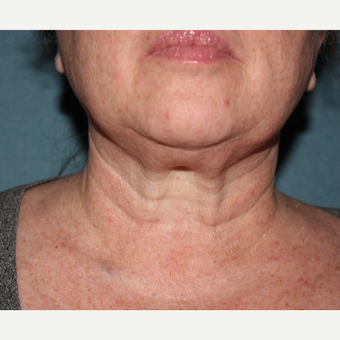 55-64 year old woman treated with 1 treatment Kybella after 3185549