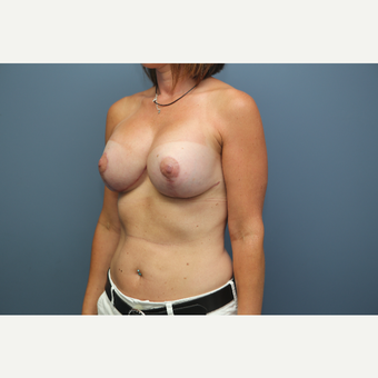 25-34 year old woman treated with Breast Lift after 3657791