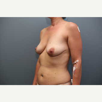 25-34 year old woman treated with Breast Lift before 3657791