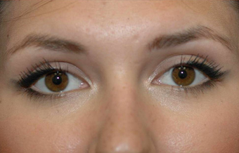 Blepharoplasty after 450145
