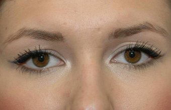 Blepharoplasty before 450145