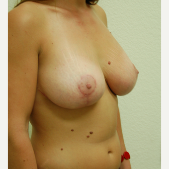 25-34 year old woman treated with Breast Lift after 3310949