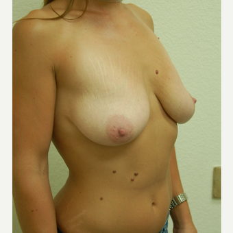 25-34 year old woman treated with Breast Lift before 3310949