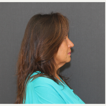 55-64 year old woman treated with Rhinoplasty, after 3000363