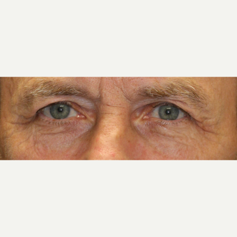 65-74 year old man treated with Injectable Fillers before 3616350