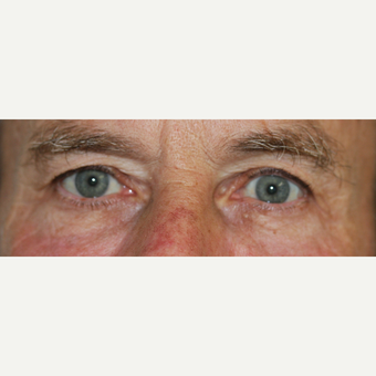 65-74 year old man treated with Injectable Fillers after 3616350