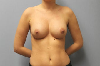 28 Year old Breast Augmentation, 286 cc Gel under the muscle B to C Cup with inframammary incision after 1363458