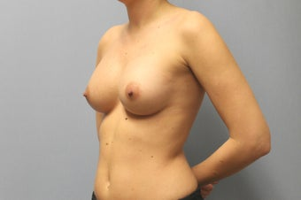 28 Year old Breast Augmentation, 286 cc Gel under the muscle B to C Cup with inframammary incision 1363458