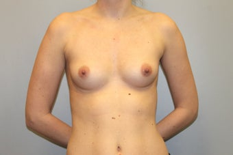 28 Year old Breast Augmentation, 286 cc Gel under the muscle B to C Cup with inframammary incision before 1363458