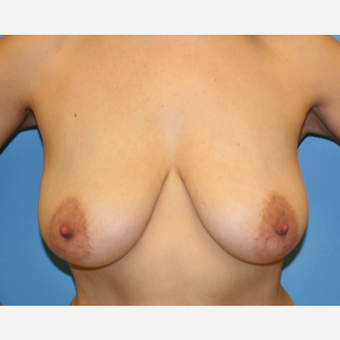 45-54 year old woman treated with Breast Lift before 3582191