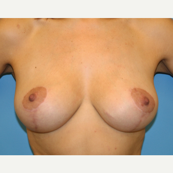 45-54 year old woman treated with Breast Lift after 3582191