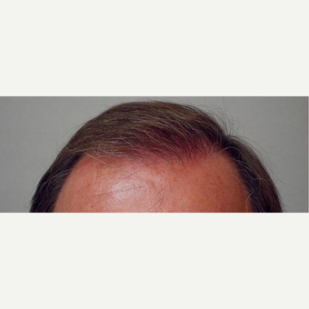 Hair Transplant after 3241314