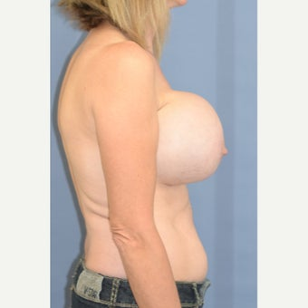 Ruptured Implants and Seroma 1860902