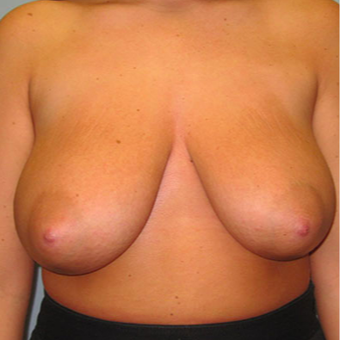 Breast Augmentation before 3467354