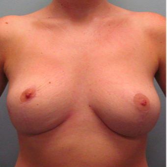 Breast Augmentation after 3467354