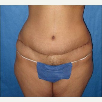 35-44 year old woman treated with Panniculectomy after 3731084