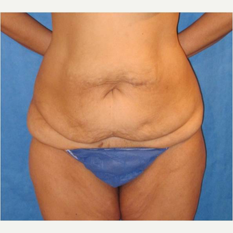 35-44 year old woman treated with Panniculectomy before 3731084